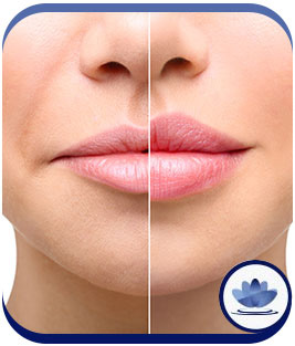 Dermal Fillers at Cara Mia Med Spa in Lake Zurich, IL