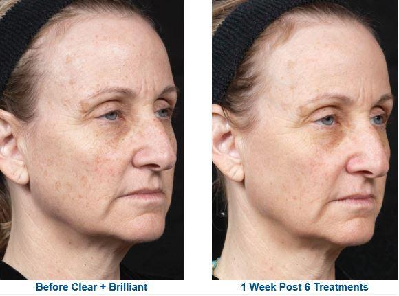 Clear + Brilliant – Laser skin resurfacing
