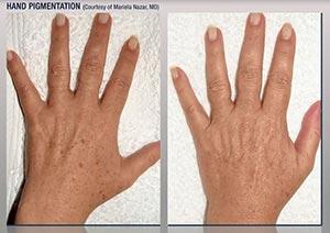 Handpigmentation
