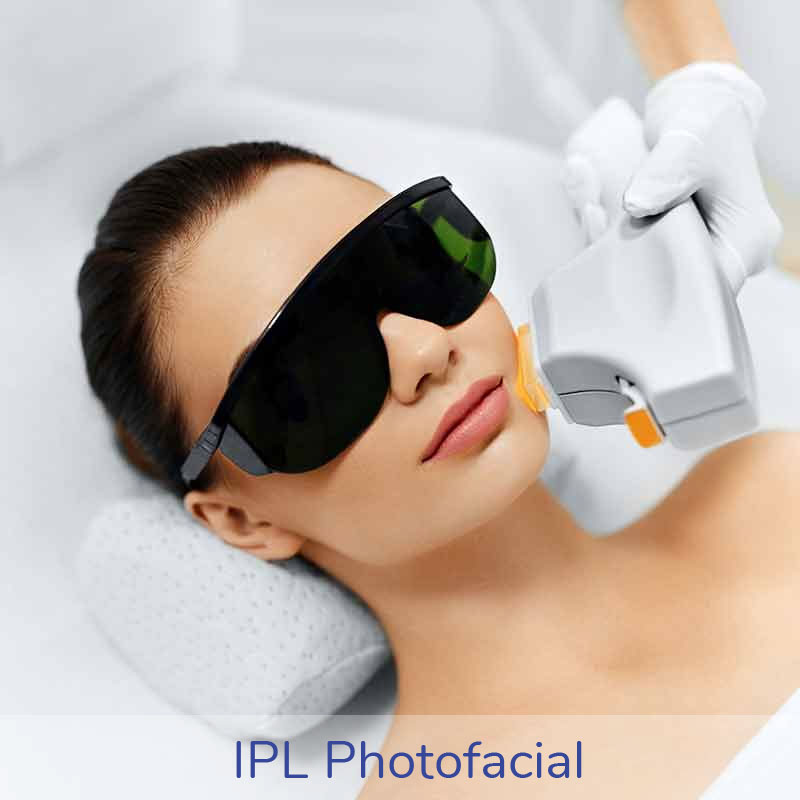 Are you looking for an IPL Photofacial treatment? At Cara Mia medspa we offer the cutting edge Laser Technology to improve the appearance of your skin.