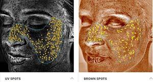 VISIA Complexion Skin Analysis