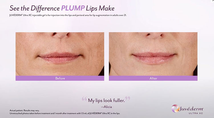 Plump Lips-Juvederm