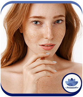 Juvederm Ultra XC Fillers at Cara Mia Med Spa in Lake Zurich, IL