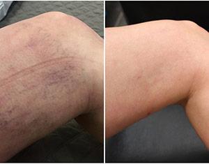 Spider Veins and Leg Veins Treatment